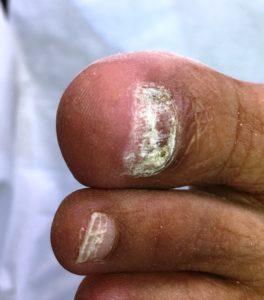 A toenail needing reconstruction