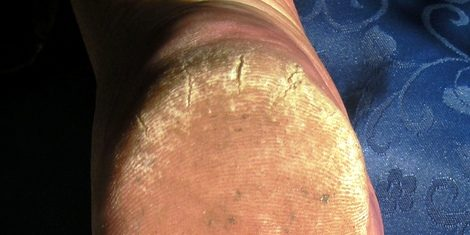Cracked skin on the heel